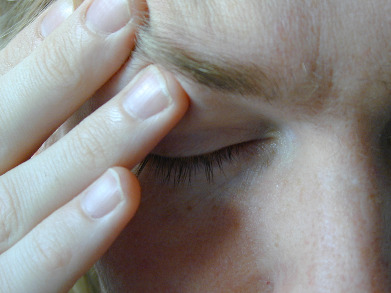 Can Dentists Help Chronic Headaches?