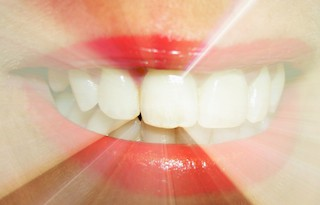 Teeth Whitening Fostoria Ohio